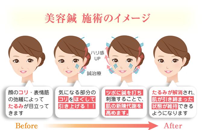 美容鍼 施術のイメージBefore&After