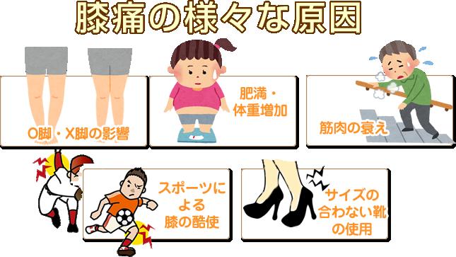 ひざ痛の様々の原因